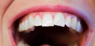 Kiedy wybrać się na wizytę do ortodonty?